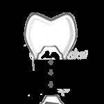 kielce_protetyka_stomatologiczna